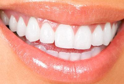 чистка-зубов-после